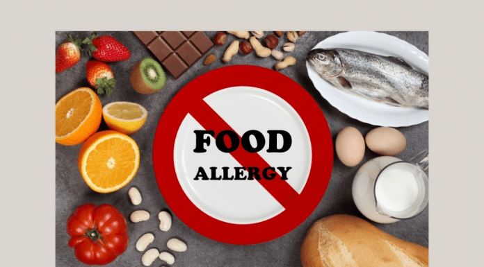 """different foods with a """"FOOD ALLERGY"""" sign crossed out in center"""